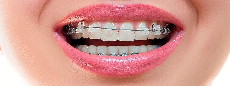 Установка ортодонтического микроимпланта