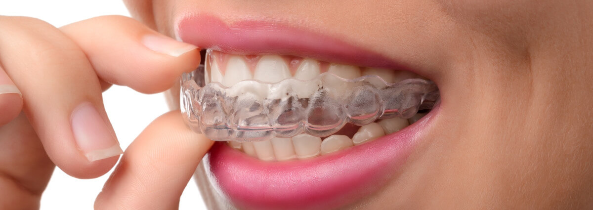 Трейнеры для зубов