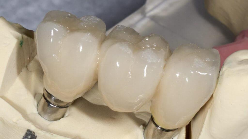 Протезирование зубов керамикой: особенности и преимущества