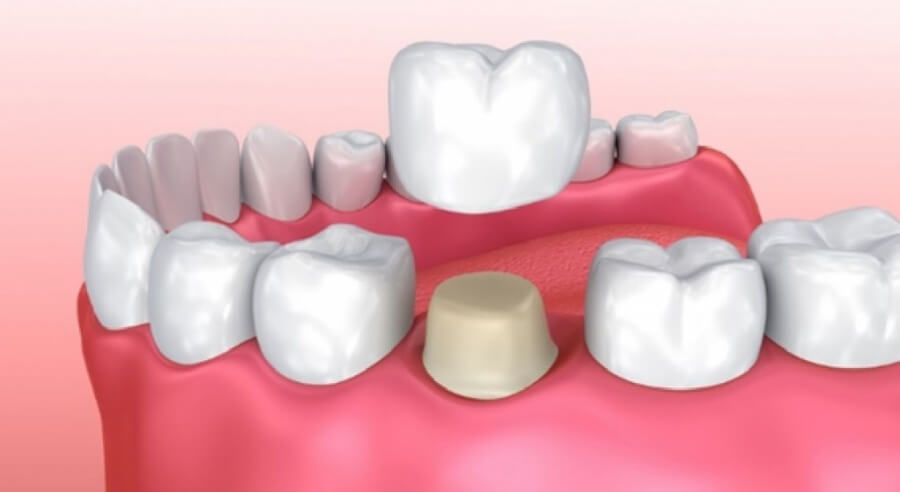 Особенности коронок на зуб из металлокерамики