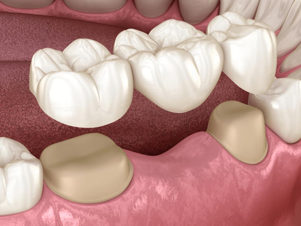 Процедура установки коронки на зуб из металлокерамики