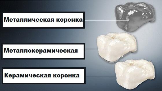 Какой тип зубных коронок выбрать