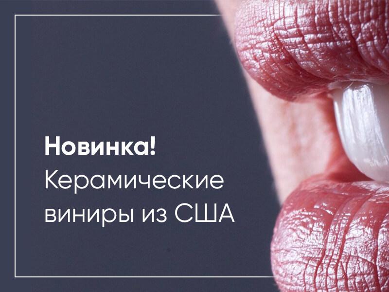 Стоматология в Алматы скидна на Керамические виниры