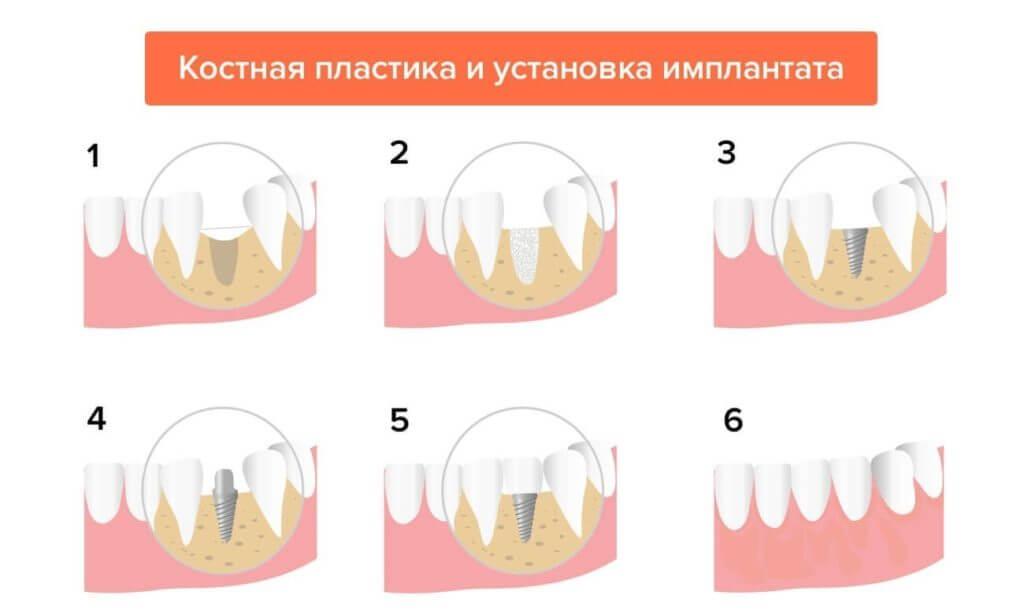 Костная пластика этапы