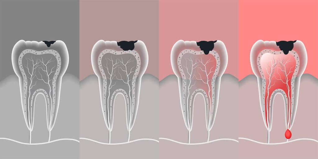 Виды кисты зубов