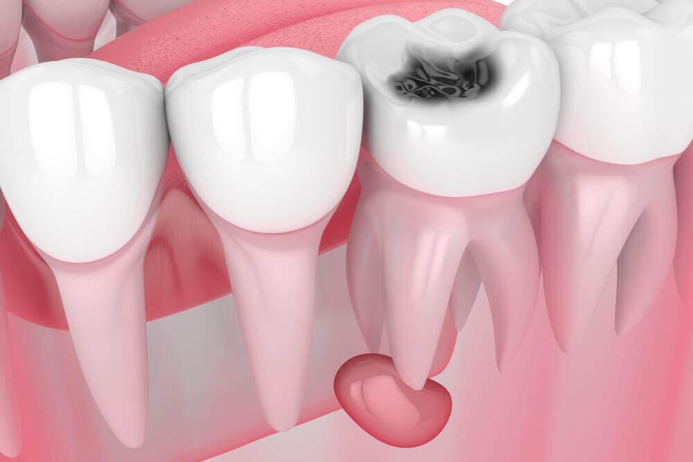 Фото киста зуба