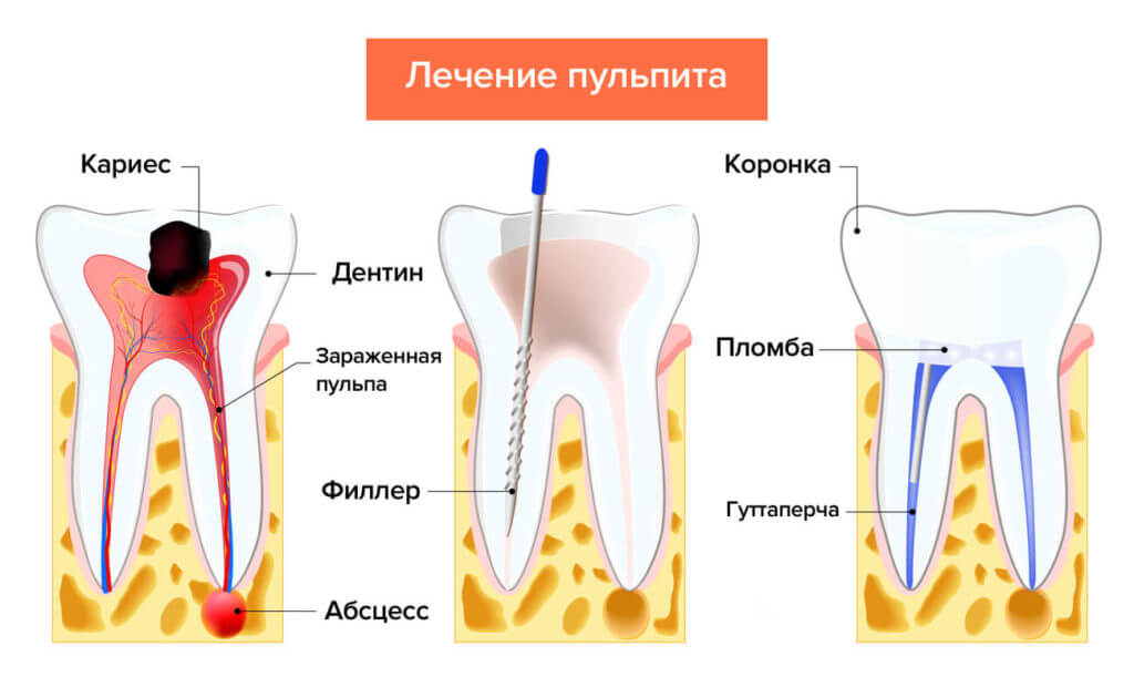 Лечение пульпита зуба с тремя каналами