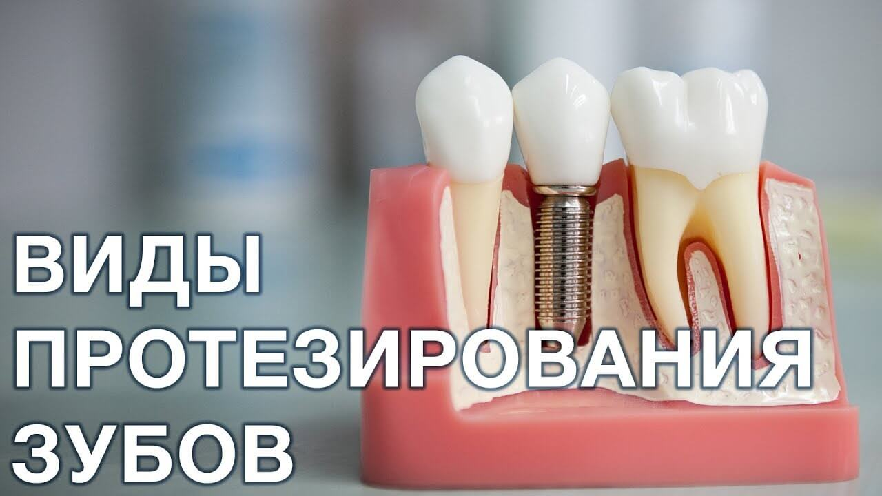 зубов протезирование