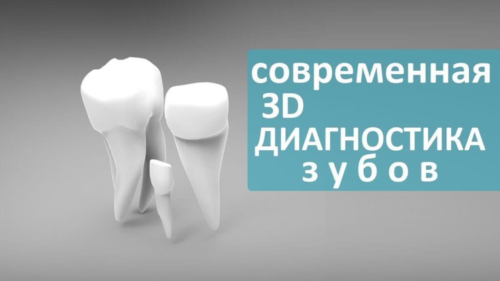 3D снимок зубов