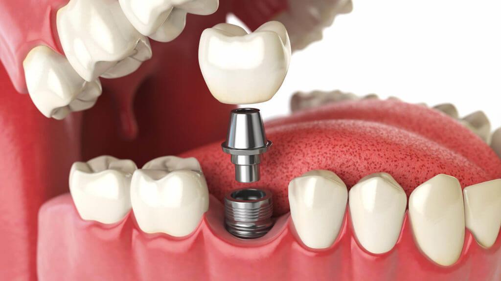 Фото Одномоментная имплантация зубов