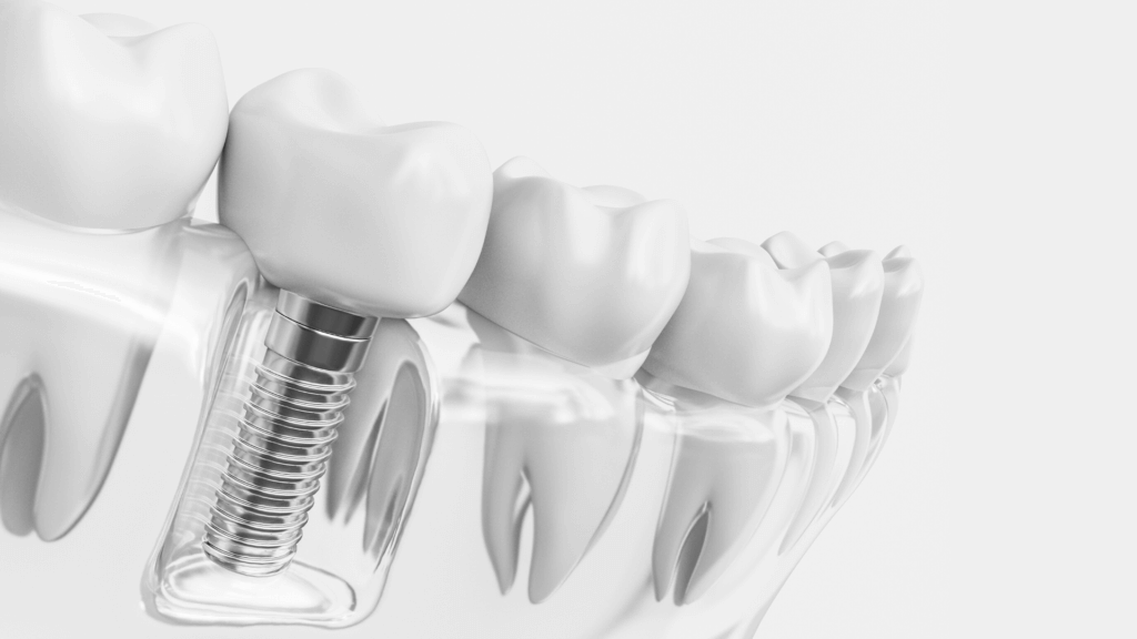 Одномоментная имплантация зубов фото