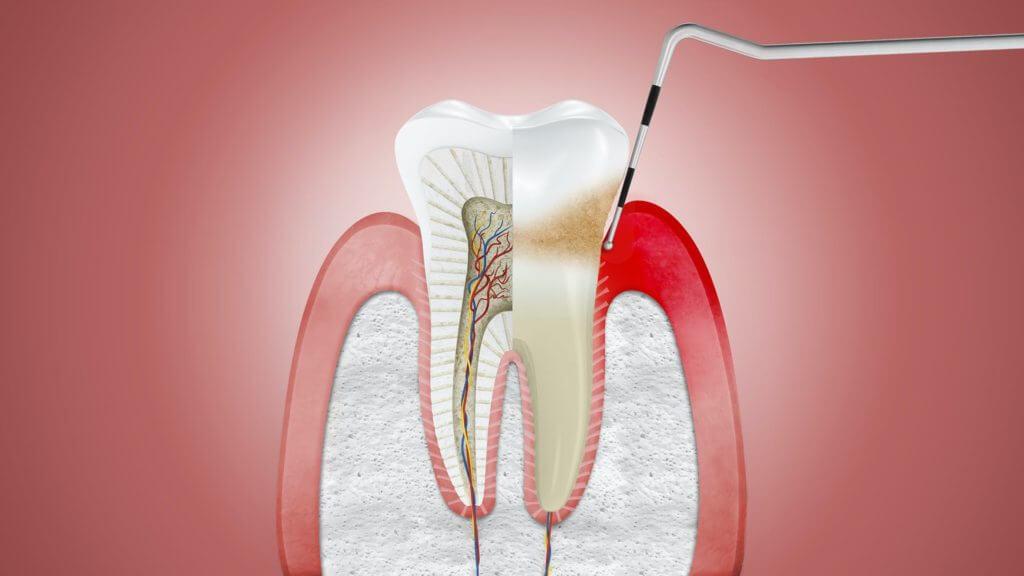 Лечение зубного ряда