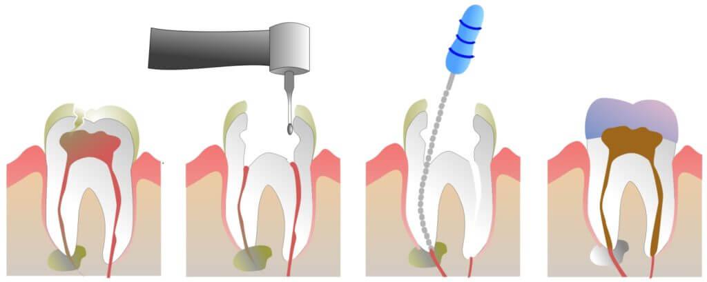 Ампутация корня зуба