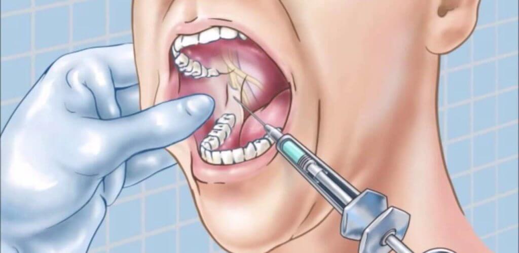 Современные анестетики, применяемые в стоматологии
