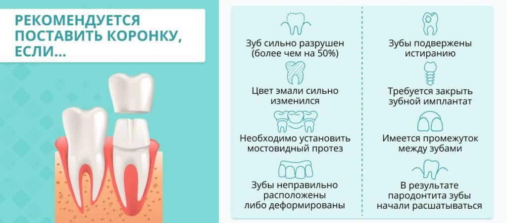 зубных коронок