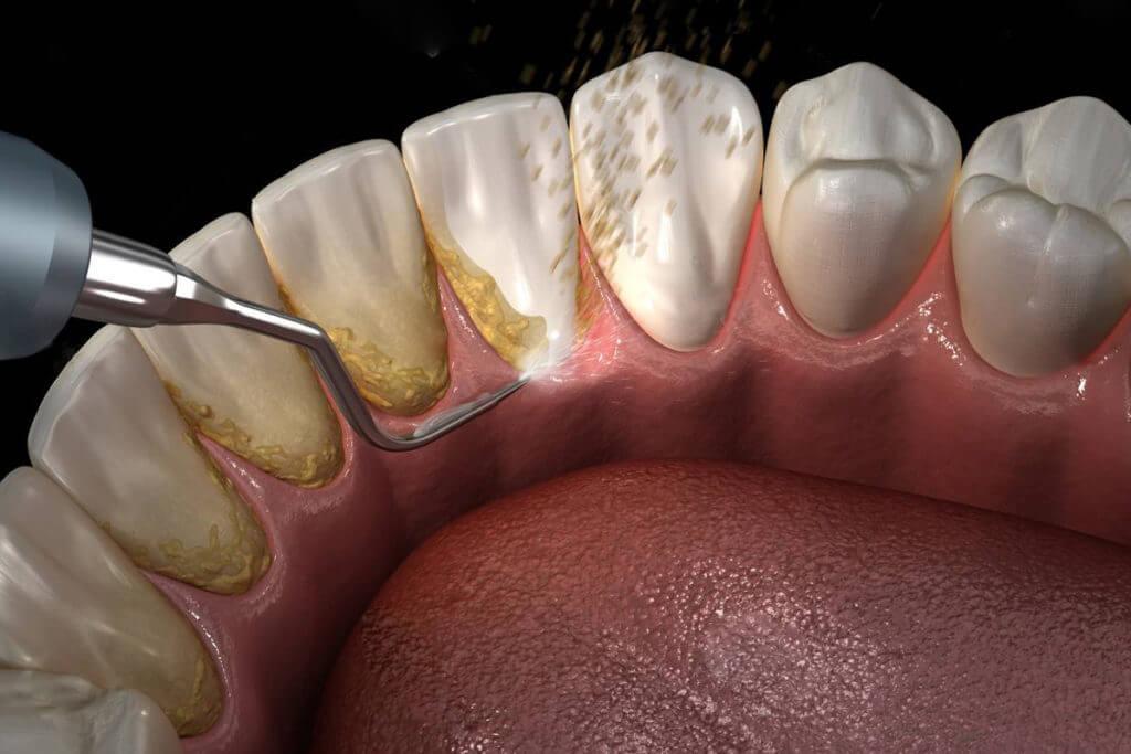 Ультразвуковая чистка зубов: преимущества, противопоказания