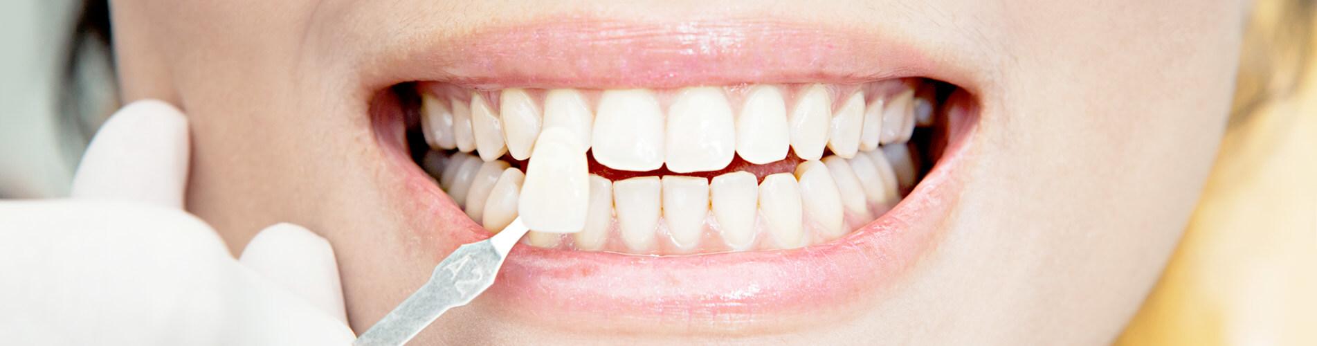 Зубосохраняющие операции в Алматы