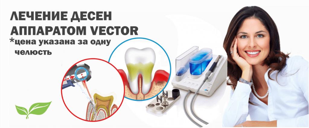 Лечение десен аппаратом «Вектор»